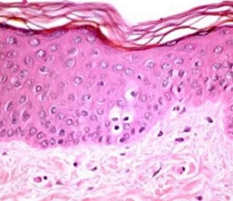 Bentuk jaringan epidermis
